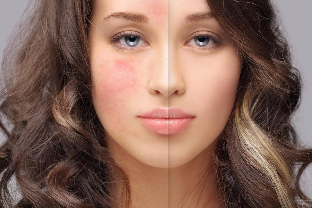 Acne-rosacea-e-eritrosi-del-volto