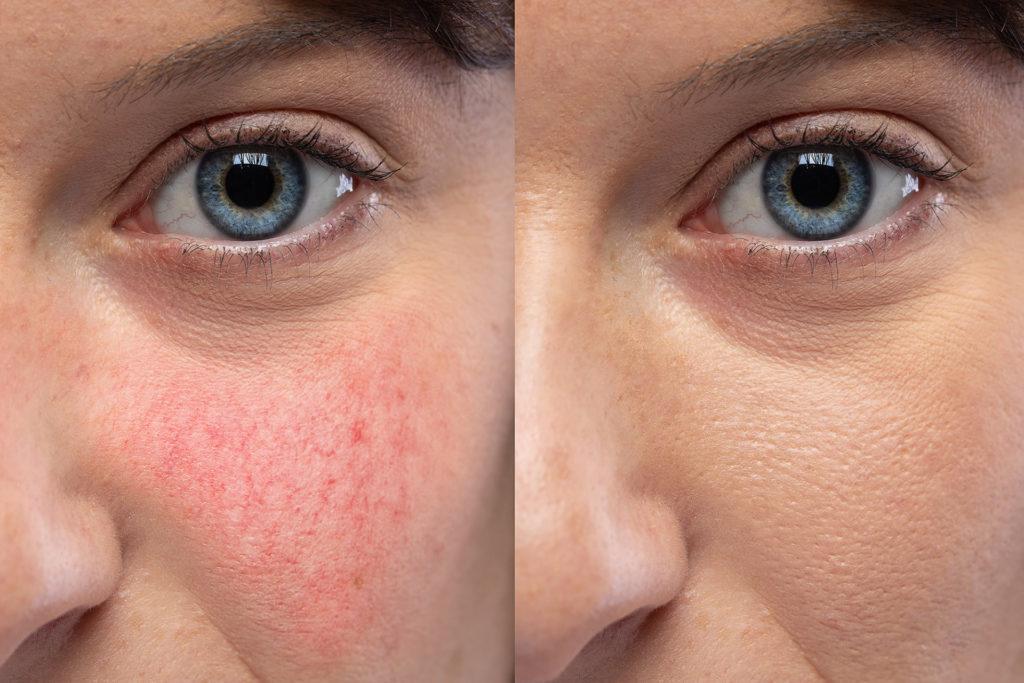 Teleangectasie del volto